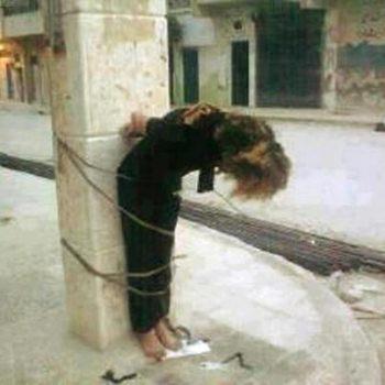Syrienne kurde torturée par l'ASL à Sheikh Maqsou