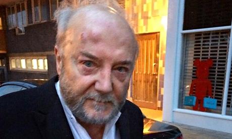 George Galloway à sa sortie de l'hôpital ce matin à Londres